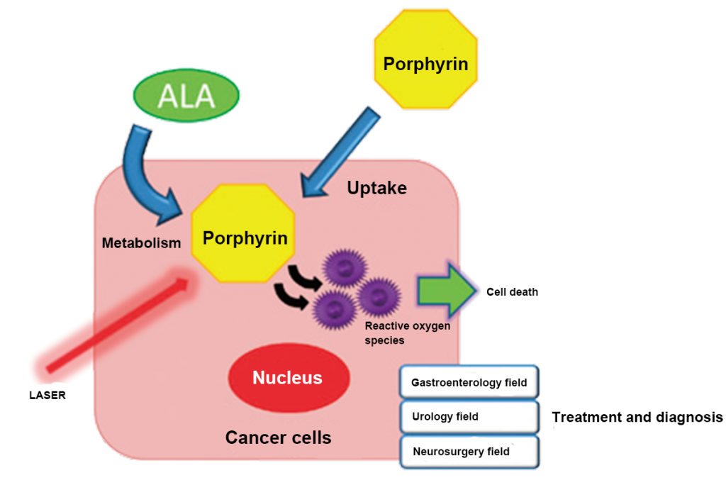 Fig. 1: ALA accumulates as porphyrin in cancer cells. Laser irradiation on porphyrin results in the generation of highly cytotoxic reactive oxygen species.