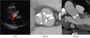 図1:大動脈弁狭窄症 (1)心エコー図(色が付いている部分は弁の不具合により血流に異常がある部分)        (2)CT 検査(弁の断面像と長軸像。弁に石灰化による異常がある)