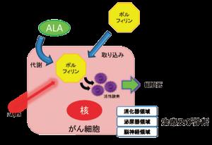 図1:ALA はポルフィリンとしてがん細胞に蓄積する。 これにレーザーを当てると細胞傷害性の高い活性 酸素が発生する。