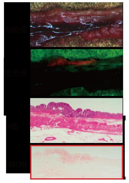 図2:がん手術検体の組織像(赤枠は組織 免疫染色像)蛍光像で赤色蛍光を放っ ている部分と活性酸素種を産生する iNOS の局在が一致している。赤色蛍 光部ががん部位である事はHE 染色か ら確認する事が出来る。