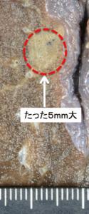 図2:肺の前臨床がんの一例