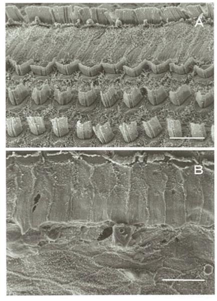 図2:血流遮断と再灌流による有毛細胞の聴毛障害の様子 ( A:虚血非負荷、B:虚血負荷後) 「内耳性難聴の治療に向けてー病態モデルを用いたアプローチー(原晃 著)」 より転載